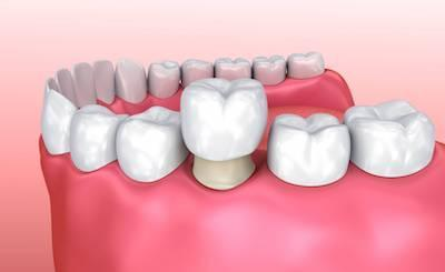 Dental crown covering damaged tooth at Bellevue dentist office