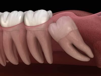 Impacted wisdom tooth at Bellevue NE dentist office